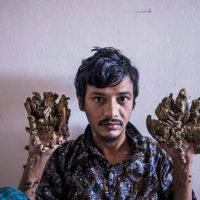 Bangladeshi man with tree hands begs doctors for amputation